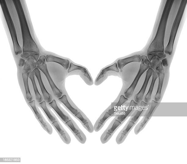 negative x-ray - human palms folded in a heart shape - bones stock photos and pictures