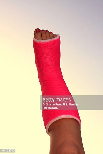 neon pink plaster cast on girl's broken foot - cast colors for broken bones stock pictures, royalty-free photos & images