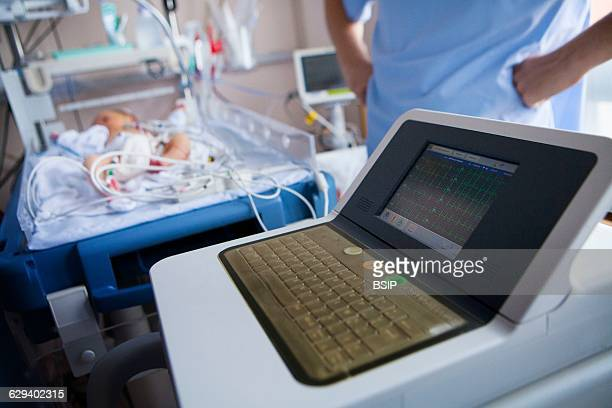 Neonatology service in a hospital in HauteSavoie France A newborn baby showing heart beat irregularities takes an ECG