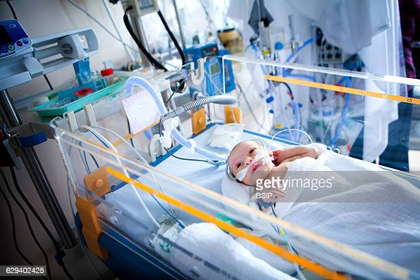 Neonatology service in a hospital in HauteSavoie France A newborn baby down who is in respiratory distress having inhaled some amniotic fluid