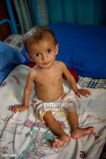 nepal, kathmandu, earthquake relief efforts - malnutrition stock pictures, royalty-free photos & images