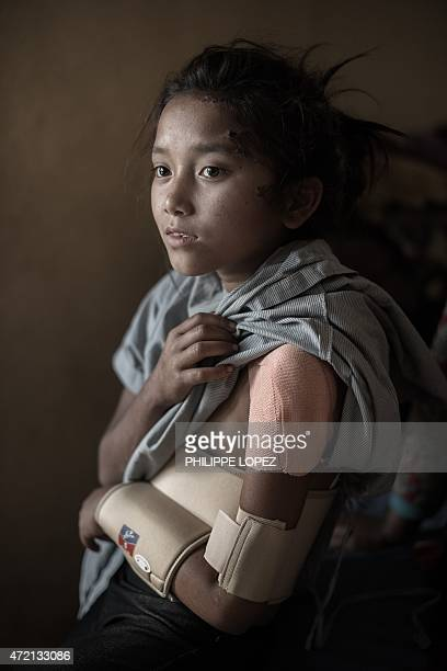 Nepalese earthquake survivor Pari Tamang shows her broken arm as she sits on a hospital bed in Kathmandu on May 4 2015 following a 78 magnitude...
