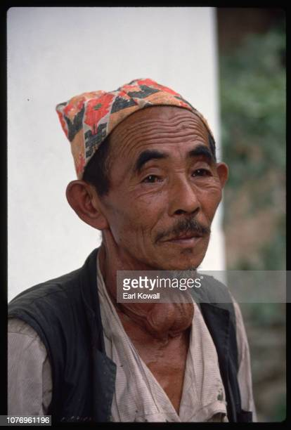 Nepalese Rai Villager with Goiter