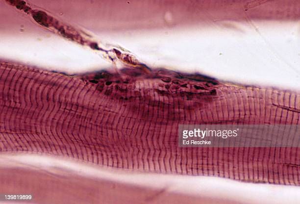 Neuromuscular junction. 250X at 35mm. Shows: a neuromuscular junction (motor end plate), an axon of a motor neuron, and a striated skeletal muscle fiber (cell).