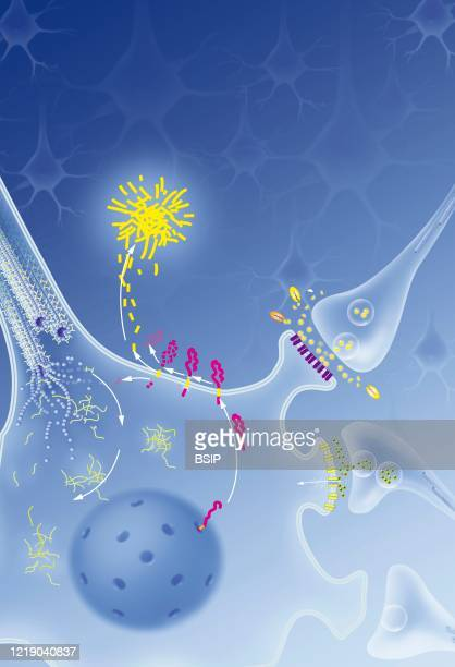 Neuron with neurofibrillary degeneration process senile plaque treatments Neuron in the central nervous system affected by abnormal cleavage of APP...