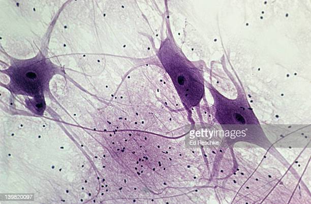 Neurons (Motor), Spinal Cord, 50X at 35mm. Shows: 3 neurons, cell bodies, nuclei, dendrites, probable axon, and neuroglial cells.