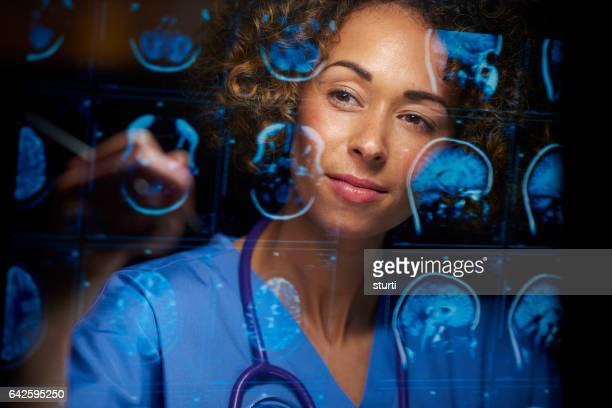 neurosurgeon checking mri scans - medical x ray stock pictures, royalty-free photos & images