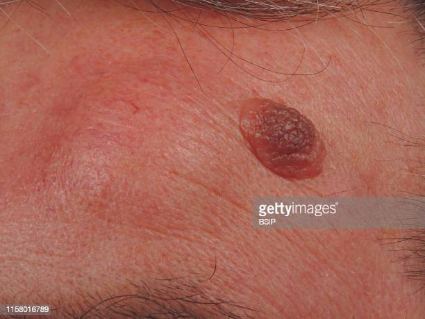 Nevus verrucosus and lipoma of the forehead