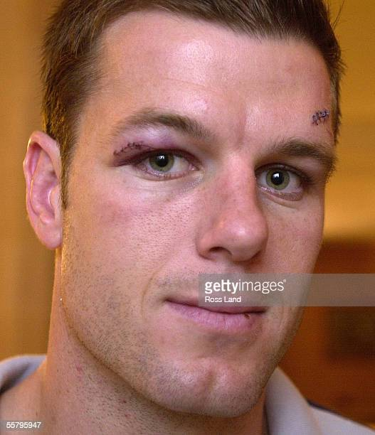 New cap halfback Steve Devine shows the effects of a knock to the head from the knee of Richard Hill during the All Blacks 2831 loss to England in...
