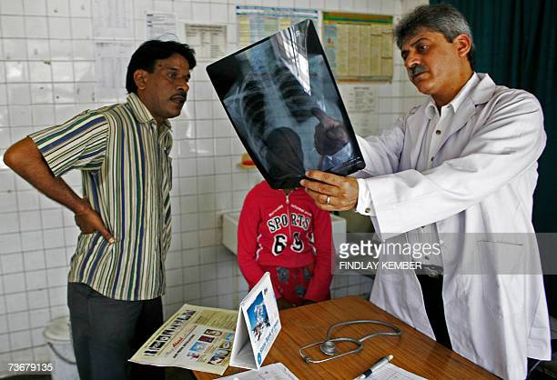 TO GO WITH STORY 'HEALTHTUBERCULOSISINDIA' In this photograph dated 20 March 2007 medical Officer in Charge Arun Mendiratta gestures as he shows the...