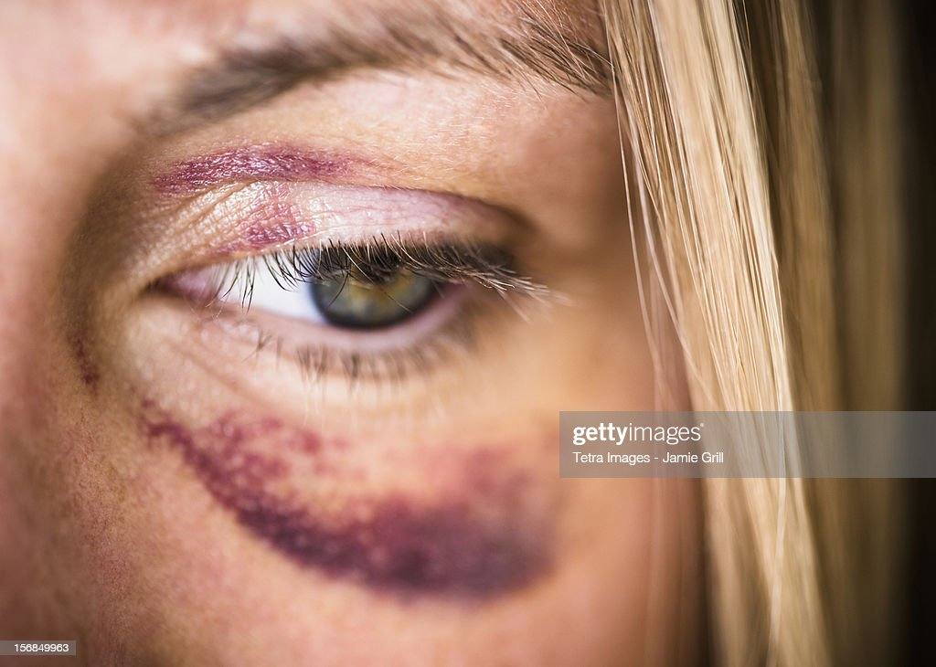 USA, New Jersey, Jersey City, Portrait of woman with black eye : Foto stock