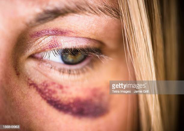 usa, new jersey, jersey city, portrait of woman with black eye - violenza foto e immagini stock