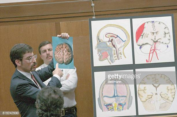 Key medical witness Dr Douglas Miller uses autopsy charts to describe the brain damage suffered by six year old Lisa Steinberg He compared Lisa's...