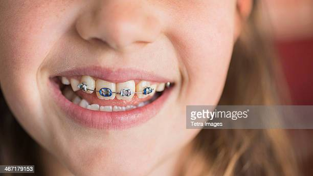 USA, New York, New York City, Close up of girl's (8-9) mouth with braces