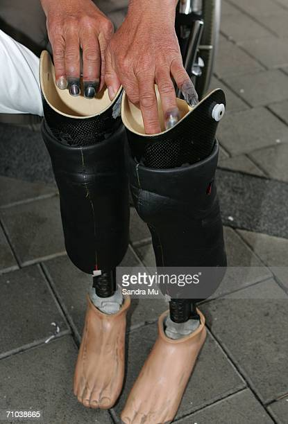 New Zealand climber Mark Inglis a doubleamputee grabs his prosthetic legs with badly frostbitten fingers upon arriving at Auckland International...