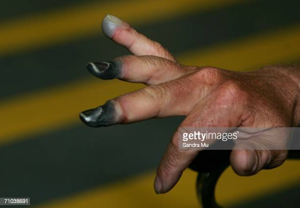 New Zealand climber Mark Inglis a doubleamputee shows his badly frostbitten fingers as he arrives at Auckland International airport after returning...