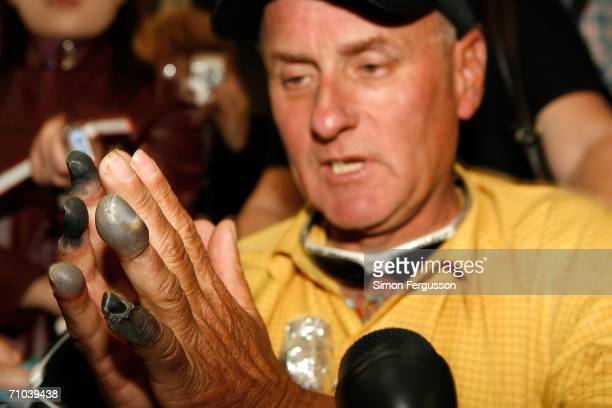 New Zealand climber Mark Inglis a doubleamputee shows the media his badly frost bitten hands upon arriving at Christchurch airport after returning...