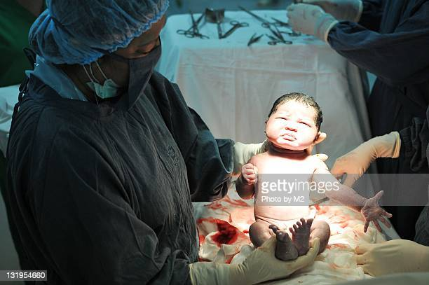 Newborn at birth under strong light in doctor hand
