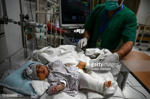 A newborn baby Bibi Amena receives treatment for the gun wound in her right leg as she has been rescued and brought to the French Medical Institute...