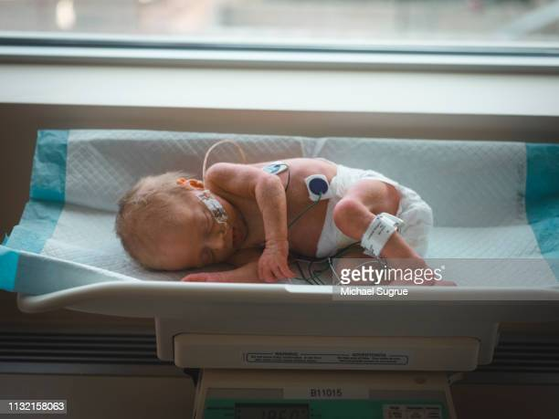 A newborn baby lies on a scale at the hospital.