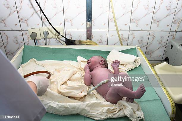 newborn child at the age of one minute - umbilical cord stock photos and pictures