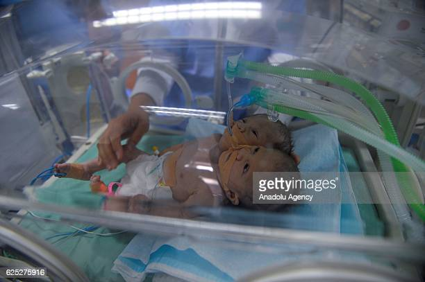 Newborn conjoined twin babies are seen in an incubator at Dar AlShifa Hospital in Gaza City Gaza on November 23 2016