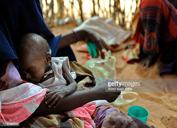 A newly displaced Somali mother cradles her severely malnourished child at a feeding centre in Doolow south western Somalia UN refugee agency chief...