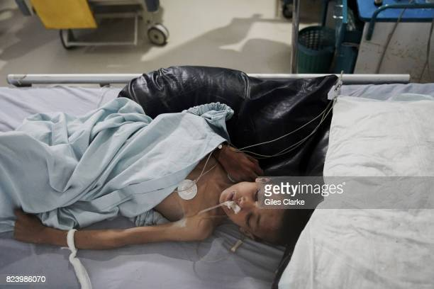 A YEMEN 3 MAY A newlyadmitted suspected cholera patient awaits treatment in the emergency wing in Sana'a