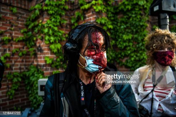 NBC News journalist Ed ou bleeds after police started firing tear gas and rubber bullets near the 5th police precinct following a demonstration to...