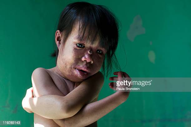 Nguyen The Hong Van has a skin disorder and is also mentally handicapped poses March 6 in Danang Vietnam at the Danang Agent Orange Vocational Center...