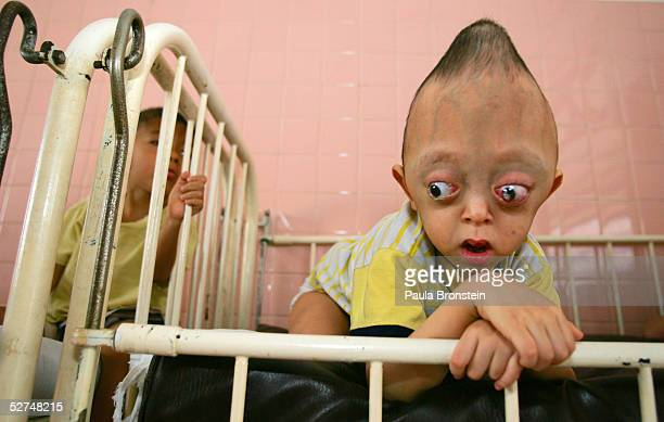 Nguyen Xuan Minh 4 years lays in a crib at the Tu Du Hospital May 2 2005 in Ho Chi Minh City Vietnam He has been deformed since birth from what may...