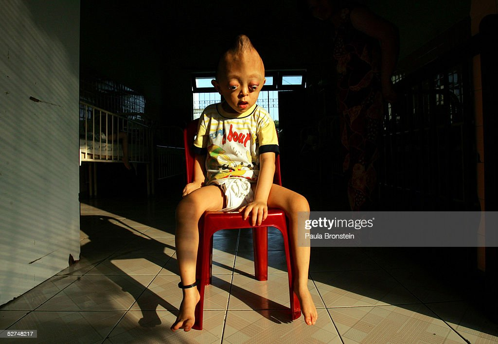 Nguyen Xuan Minh, 4 years, sits on a chair at the Tu Du Hospital May 2, 2005 in Ho Chi Minh City, Vietnam. He has been deformed since birth from what may be the effects of the defoliant Agent Orange used in the Vietnam War. On March 10 a U.S. Federal Court in Brooklyn, New York dismissed a law suit on behalf of millions of Vietnamese against the U.S. for its use of the toxic defoliant during the Vietnam War, which contains dioxin. In 1984, seven American chemical companies paid $180 million to settle a suit by U.S veterans affected by Agent Orange. Vietnam pledges to pursue the lawsuit and is taking the case to a US Court of Appeals in June.