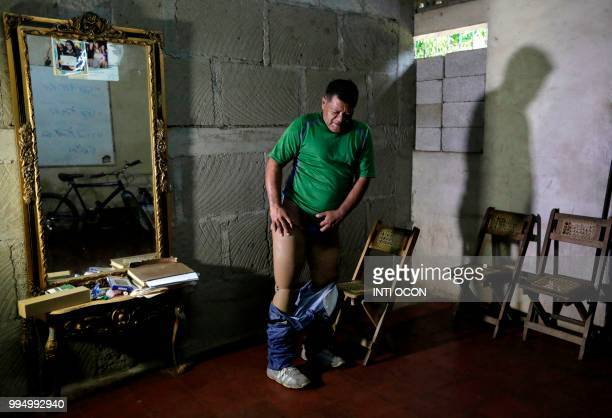 TOPSHOT Nicaraguan Alvaro Gomez shows the prosthesis of his leg which he lost due to the impact of a projectile during the war between Sandinista...
