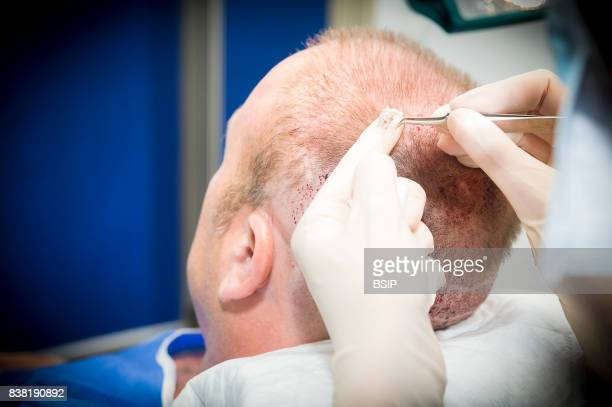 Nice France FUE Follicular Unit Extraction hair transplant on a patient with earlier two strip harvesting sessions scars FUE involves harvesting...