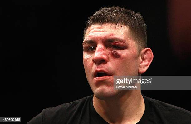 Nick Diaz stands in the Octagon after five rounds against Anderson Silva in a middleweight bout during UFC 183 at the MGM Grand Garden Arena on...