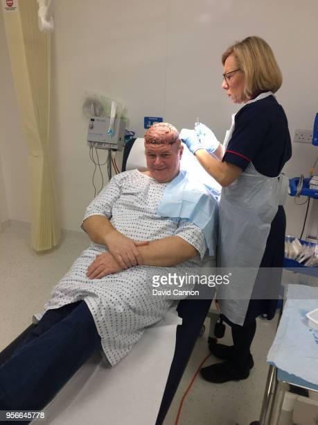 Nick Edmund seen here on November 17 2017 having his scalp wound tended to by Tissue Viability Nurse Dawn Hughes in the London Bridge Hospital...