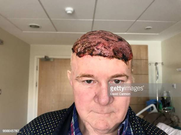 Nick Edmund seen here on November 5 2017 in the London Bridge Hospital just three days after a 10 hour scalp replacement operation to treat an...