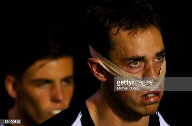 Nick Maxwell of the Magpies with his nose taped up during the round nine AFL match between the Collingwood Magpies and the Sydney Swans at Melbourne...