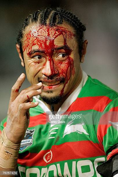 Nigel Vagana of the Rabbitohs bleeds from a head wound during the round 17 NRL match between the South Sydney Rabbitohs and the Melbourne Storm at...