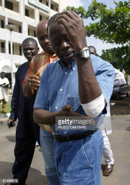 Nigeria Labour Congress President Adams Oshiomhole touches 10 October 2004 his bruised hand sustained during scuffle with security operatives while...