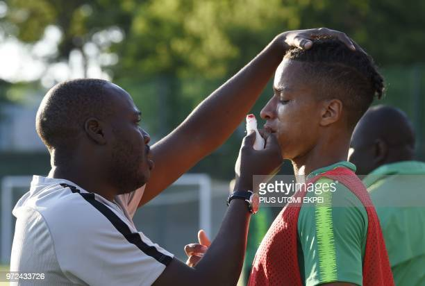Nigeria's defender Tyronne Ebuehi receives medical attention as he bleeds from the nose following a collision with a teammate during a training...