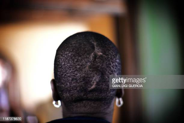 Nikelwa Makhanda shows on March 16 2009 in her house on the outskirt of Peddie in Eastern Cape the scars wounds and cuts on her head as she recounts...