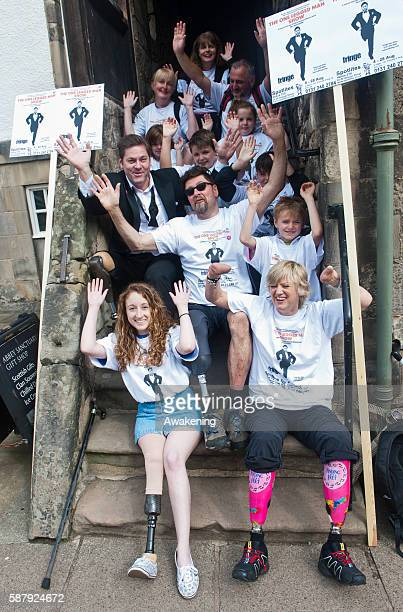 Nils Bergstrand the amputee writer and performer attends a photocall on the Royal Mile with fellow amputees in order to promote The One Legged Man...