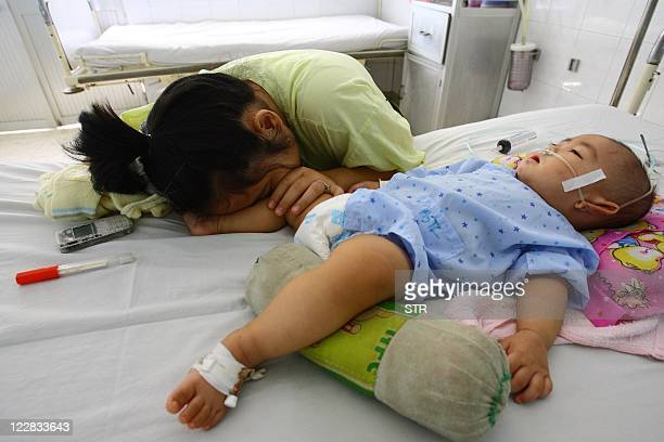 Nine-month-old boy Dao Xuan T, from the southern province of Binh Duong and affected by hand, foot and mouth disease, lies on a bed next to his...