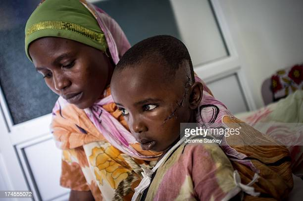 CONTENT] Nineyearold Jamila Yacob recovering in hospital in Malindi on Kenya's Indian Ocean coast September 13 2012 She was hit in the face with...