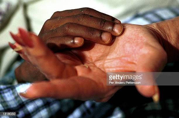 Nkosi Johnson age 12 holds his adopted mother Gail Johnson''s hand February 4 2001 at his home in Melville a suburb of Johannesburg South Africa...