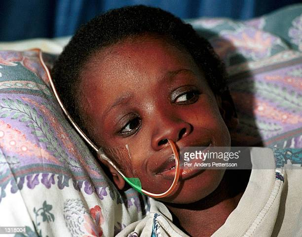 Nkosi Johnson age 12 rests his head on a pillow in his home February 4 2001 in Melville a suburb in Johannesburg South Africa Nkosi who was the...