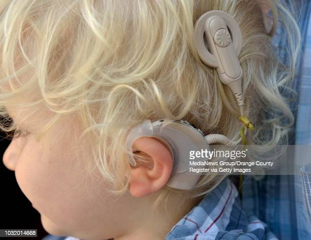 BEACH CALIF USA Noah Larson on May 31 in their Long Beach Calif home Noah was born deaf he had cochlear implant and now hears almost normally with...