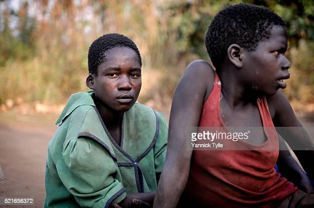 Nodding Disease Uganda