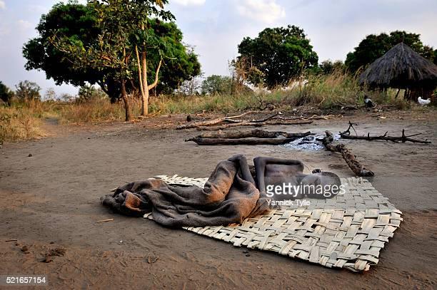 nodding disease uganda - south sudan stock pictures, royalty-free photos & images